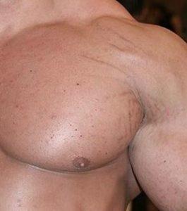 Bodybuilding och styrketräning ger bristningar