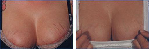 Bristningar behandlade med laserkirurgi